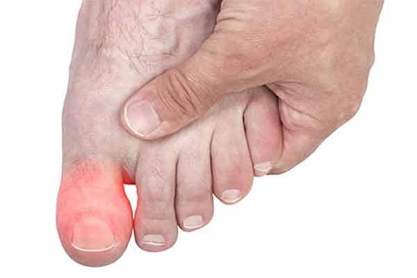 Болит сустав большого пальца на ноге (воспалился и опух): причины ...
