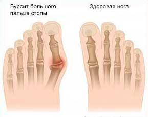 изменение в суставе большого пальца