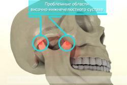 челюсть человека