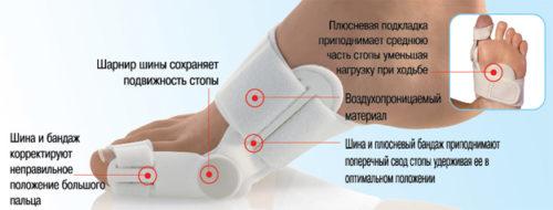 фиксация сустава большого пальца ноги