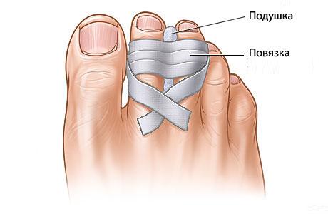 фиксация пальца на ноге