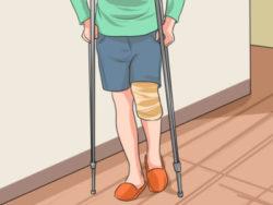 ходьба на костялях