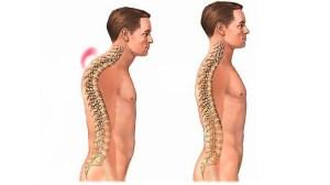 Кифоз шейного отдела позвоночника: лечение и симптомы