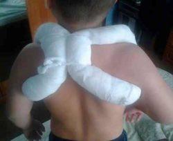 повязка при переломе ключицы у ребёнка