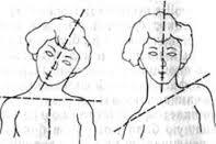 кривая шея