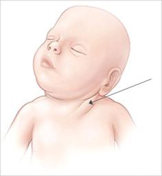 кривошея у новорожденного