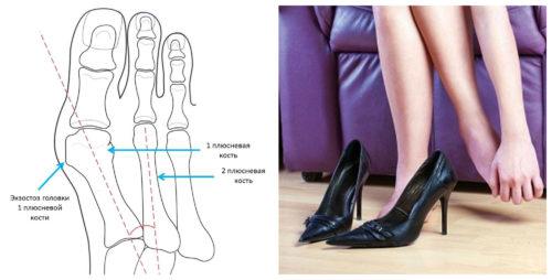 neudobnaya-obuv