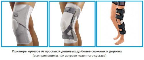 ortezy_pri_artroze_kolena