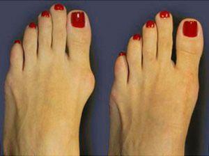 Артроз пальцев ног: симптомы и лечение