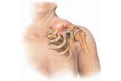 перелом шейки плеча