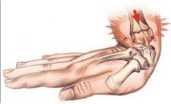 перелома сустава кости