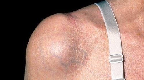 Бурсит плечевого сустава и его виды: симптомы и лечение