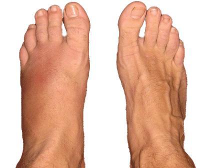Перелом стопы: признаки, сколько ходить в гипсе, упражнения для ...