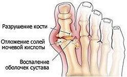 разрушение сустава большого пальца