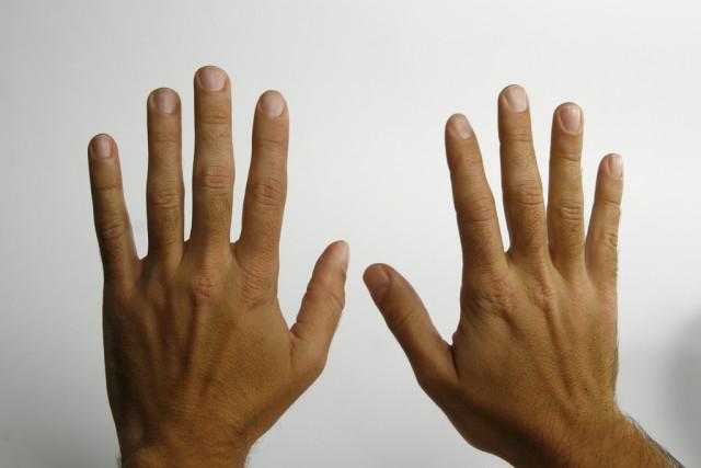 Артроз пальцев рук: симптомы, упражнения и гимнастика для лечения