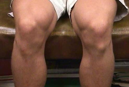 шишка под коленом