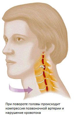 артерия в шейных позвонках