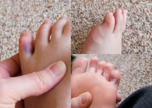 Вывих пальца на ноге: симптомы и лечение