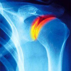 соединительная ткань плечевого сустава