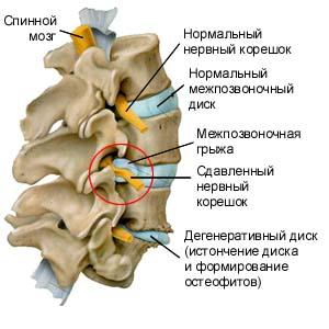 защемление диска позвоночника в шеи