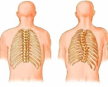 сравнение здорового позвоночника и левостороннего сколиоза