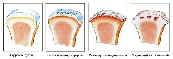 стадии плечевого артроза