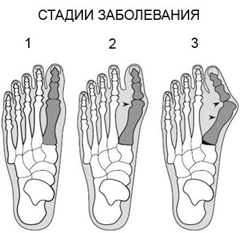 степени артроза большого пальца на ноге
