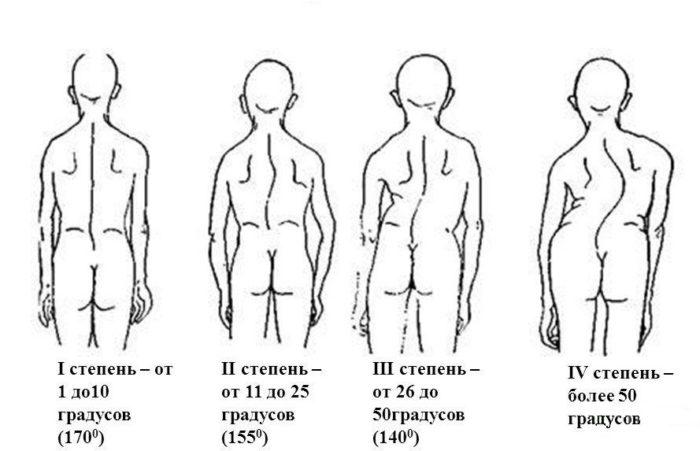 степени поясничного сколиоза