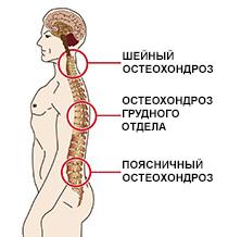 Полисегментарный остеохондроз позвоночника: поясничного, грудного ...