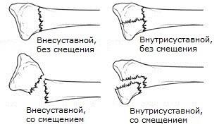 виды переломов лучевой кости
