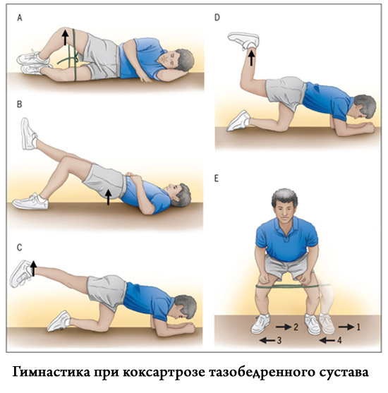 лечебные упражнения при болях в тазобедренном суставе