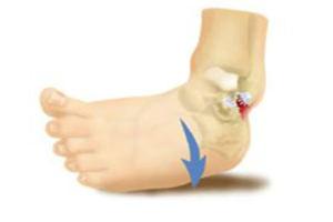 Лечение артроза голеностопного сустава в домашних условиях Ваш ортопед