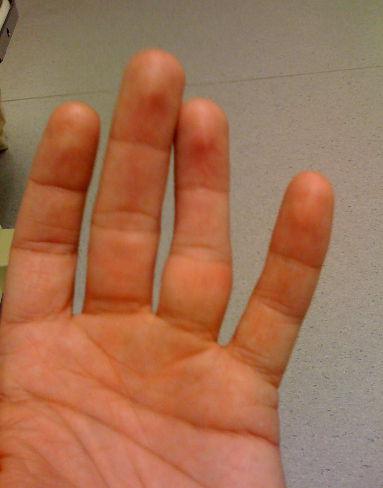 Выбила сустав на пальце руки