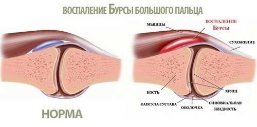 воспаление бурсы в пальце