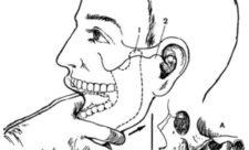 вправление челюсти