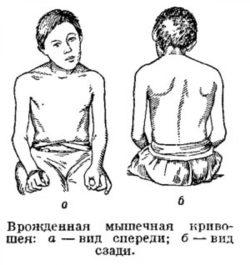 врожденная мышечная кривошея