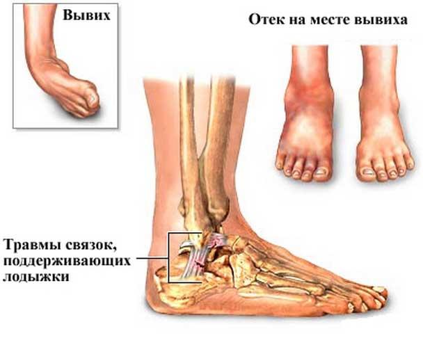 сильное растяжение связок коленного сустава лечение