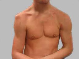 Вывих плечевого сустава: лечение, симптомы и вправление без операции